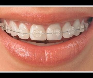 Tooth coloured braces for kids, teens and adults