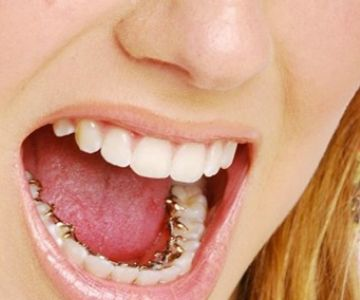 Affordable lingual Incognito braces at Excel Dental Care, Bangalore