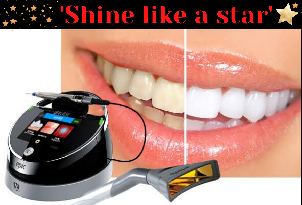 To get white teeth, contact - 9483151643