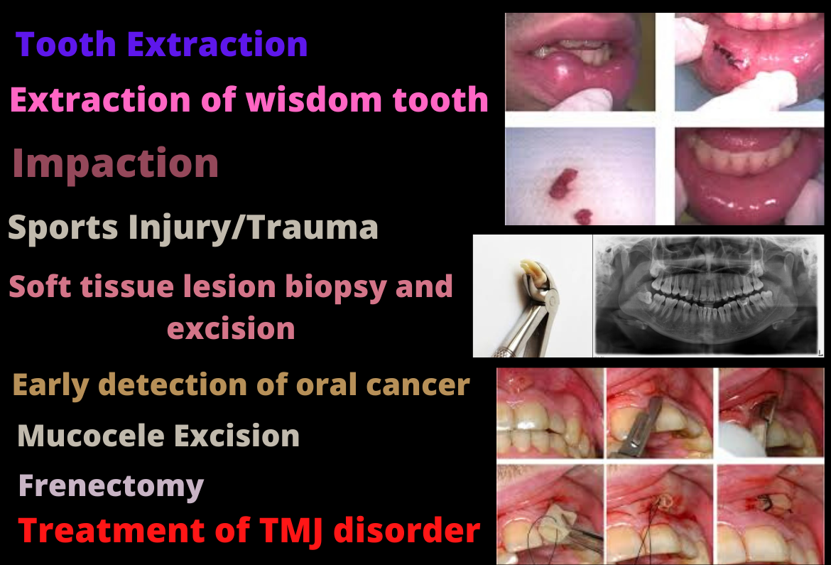 Safe extractions in Bangalore