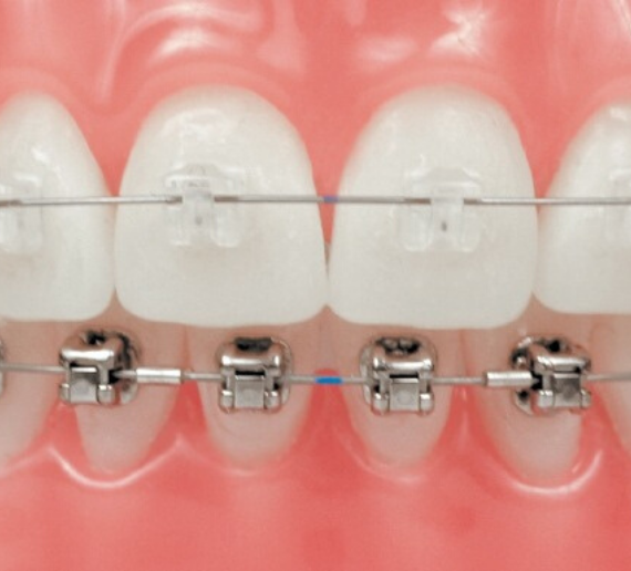 tooth coloured dental braces in Bengaluru
