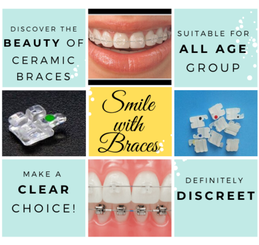 Best orthodontic Dental Clinic in Bengaluru