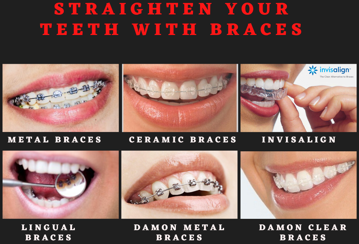 Advanced Orthodontic Clinic for Dental Braces and Invisalign
