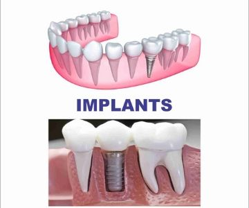 Best dental clinic for Dental Implants in Jayanagar, JP Nagar