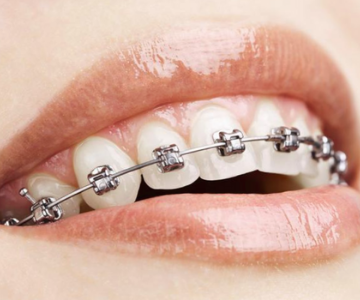 affordable metal braces at Excel Dental Care, Jayanagar, Bengaluru