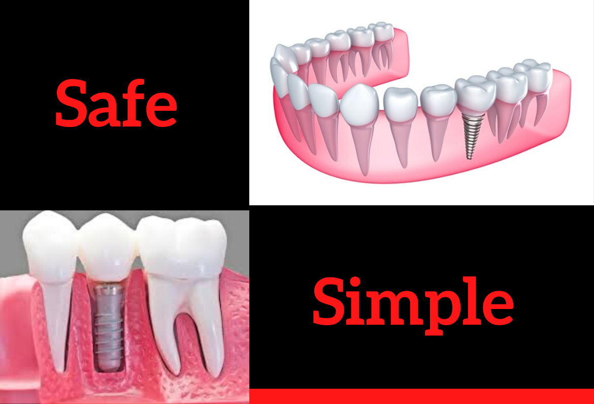 Tooth replacement by Dental Implants in Bengaluru
