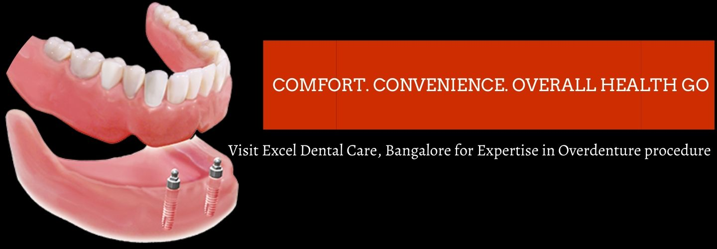 Overdenture service at Excel Dental Care, Bangalore