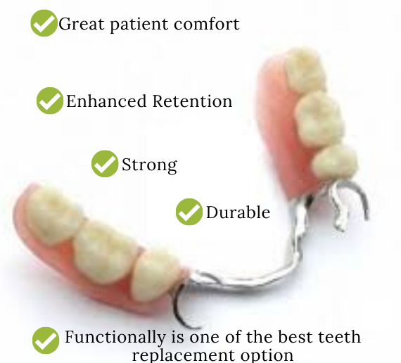Cast partial denture at Excel Dental Care, Bangalore