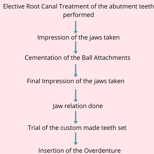 Tooth supported denture in Bangalore