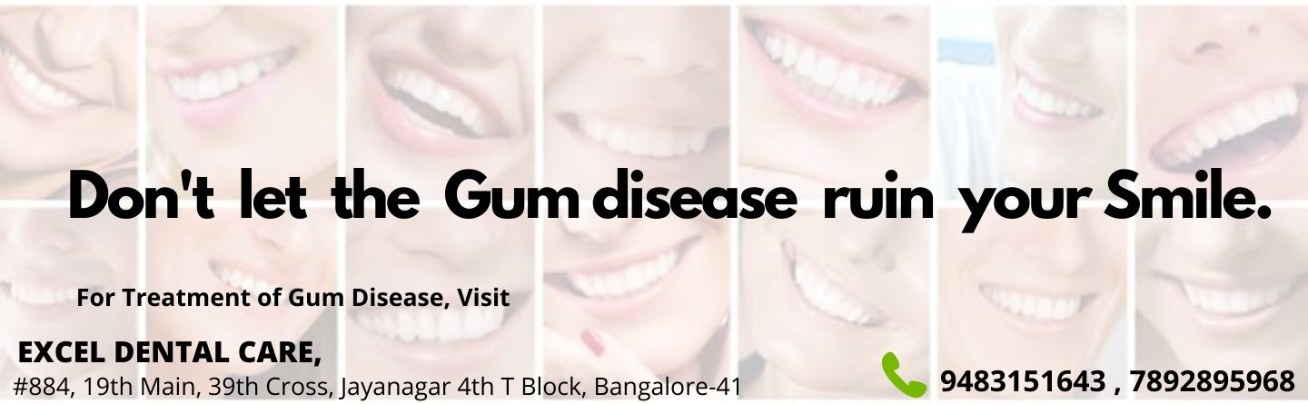 PERIODONTIST IN BANGALORE