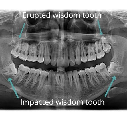 extraction of impacted tooth in Bangalore