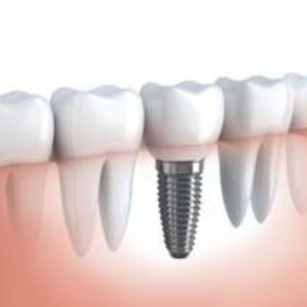 Cost of dental implants in Bangalore