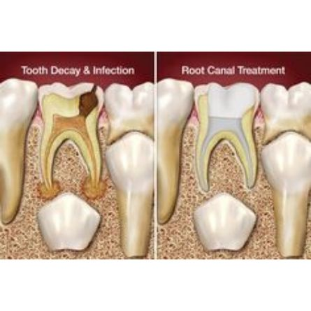 root canal treatment for kids in Bangalore