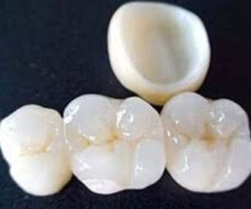Strong and durable dental crowns