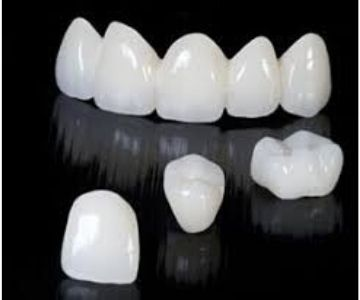 tooth coloured dental crown