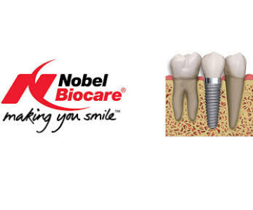 Best dentist for Implants in Bangalore