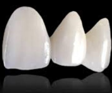 tooth coloured crowns in Bangalore