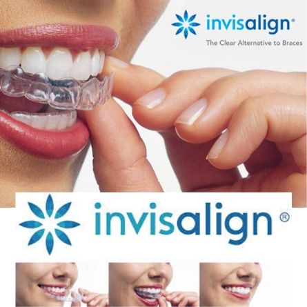 clear braces in Bangalore