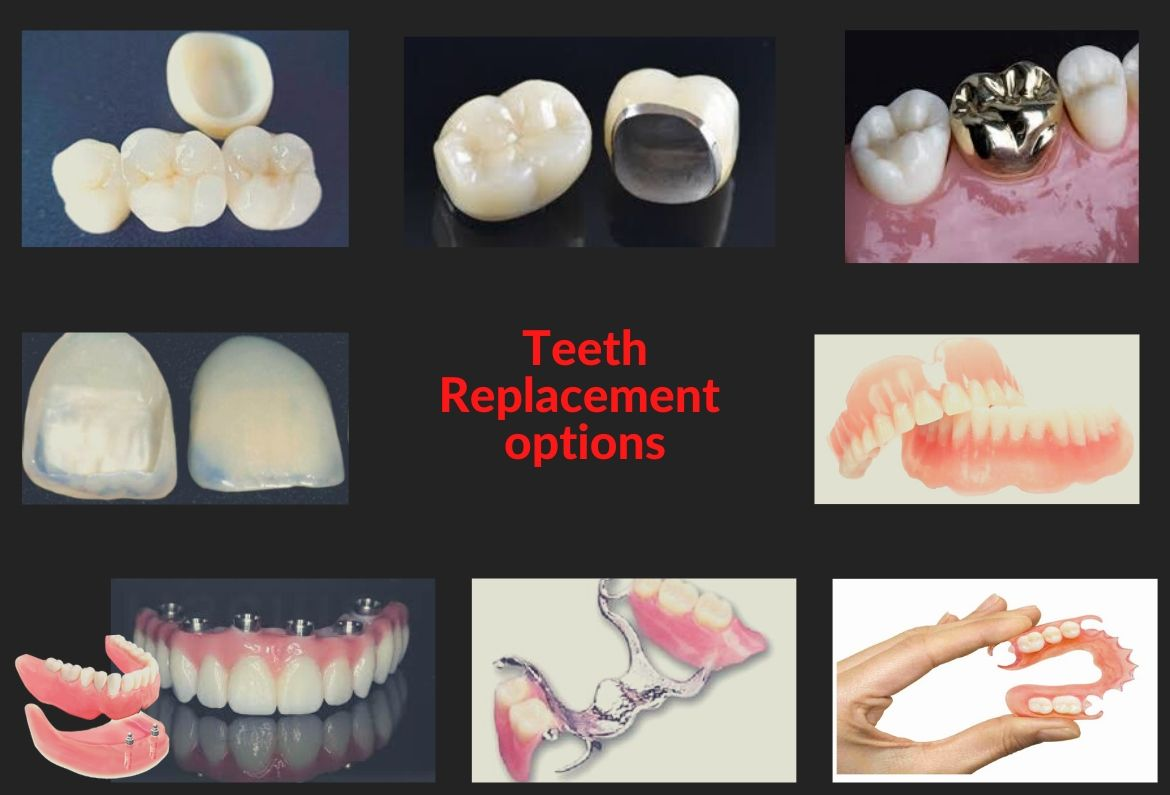 Dental clinic for crowns and bridges in Bangalore