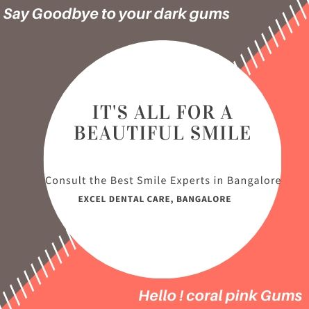 smile experts in Bangalore