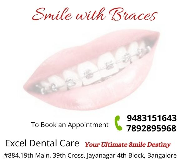 orthodontic braces in Bangalore