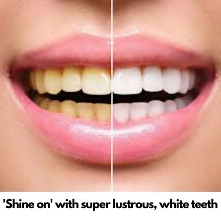 teeth whitening in Bangalore
