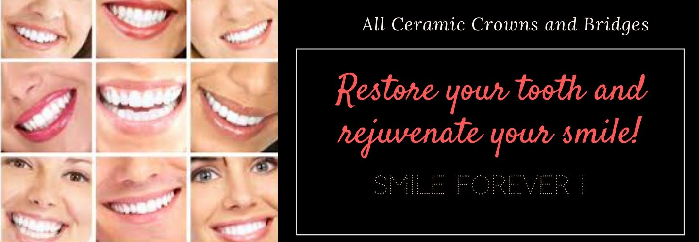 ceramic dental crowns and bridges in Jayanagar, JP Nagar