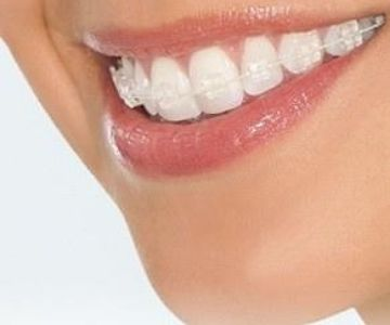 cost of ceramic braces in Bangalore