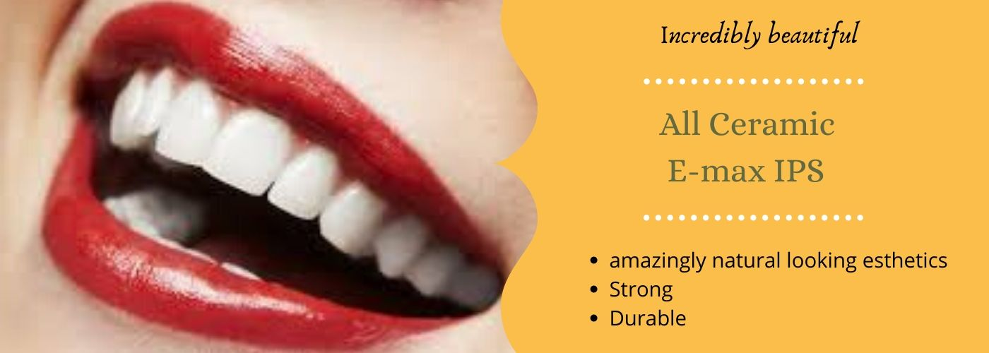 emax dental crown in Bangalore