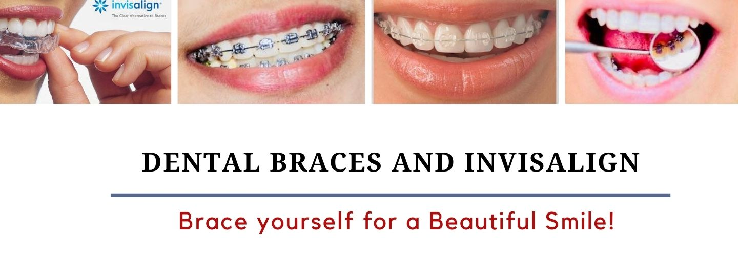 orthodontist Bangalore