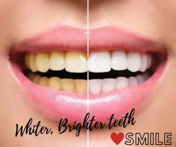 best dental clinic for teeth whitening in Bengaluru
