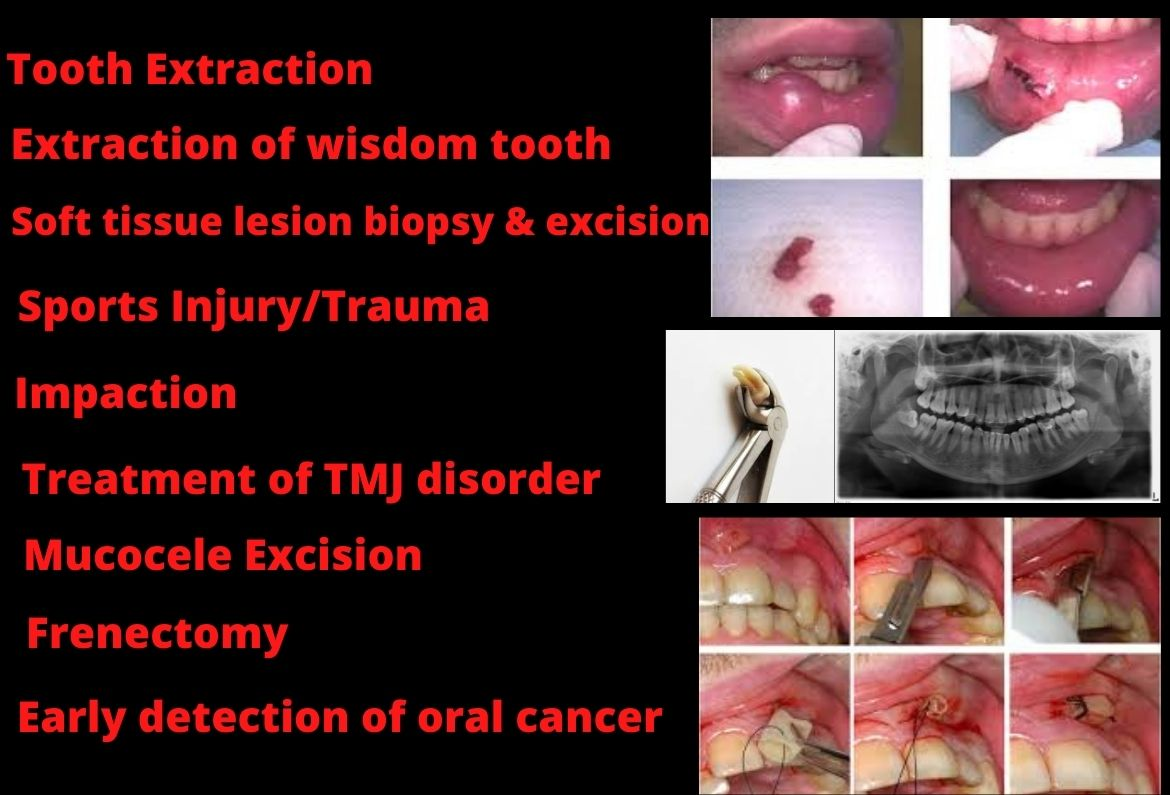 wisdom tooth extraction dental clinic